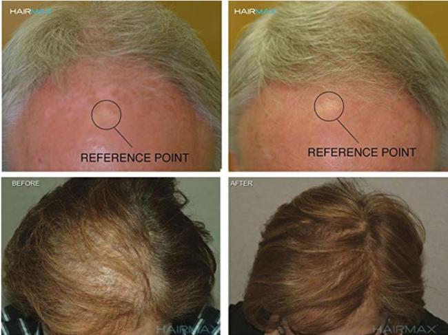 新低!FDA认证、刺激毛发生长!HairMax Ultima 12 雷射健发梳 prime到手约1999元(之前推荐2269.8元、天猫4580元) 买手党-买手聚集的地方